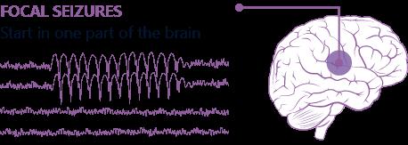Focal seizures vs. generalized seizures