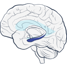 NeuroPace mesial temporal onset case study